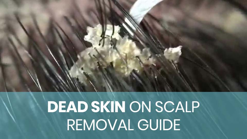 removing dandruff from scalp