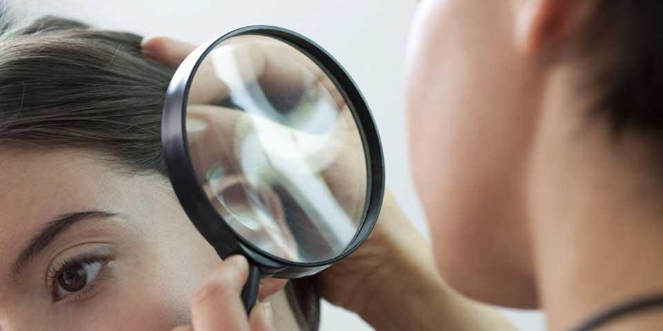 Dermatologist looking at hair