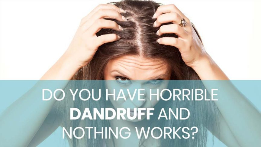 Do You Have Horrible Dandruff and Nothing Works