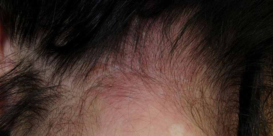 A person with sensitive scalp