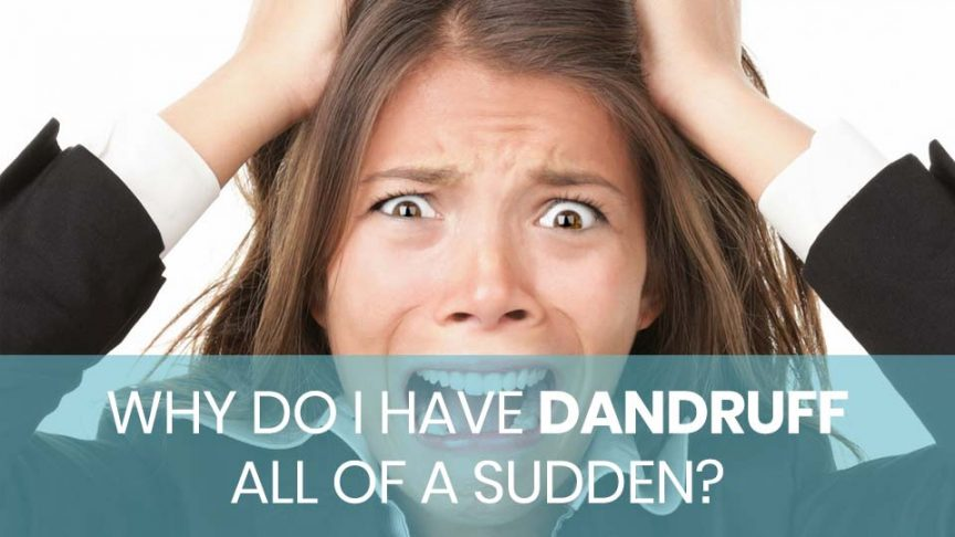 Why Do I Have Dandruff all of a Sudden