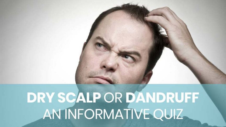 An informative quiz to check if you dry scalp or dandruff