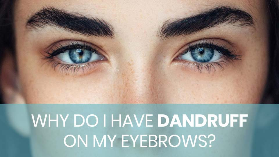 Why Do I Have Dandruff on My Eyebrows