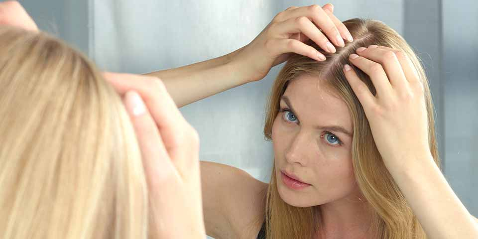 A woman experiencing hair loss due to dandruff