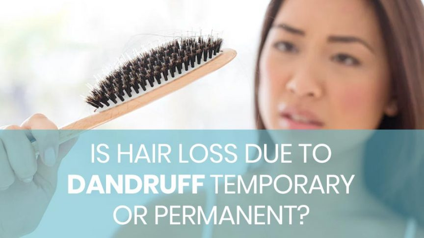 Is Hair Loss Due To Danruff Temporary Or Permanent
