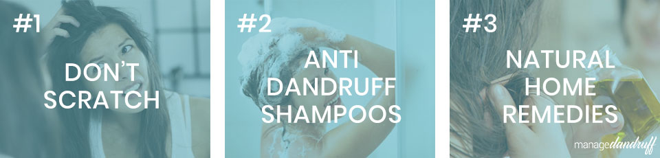 3 ways to relieve dandruff