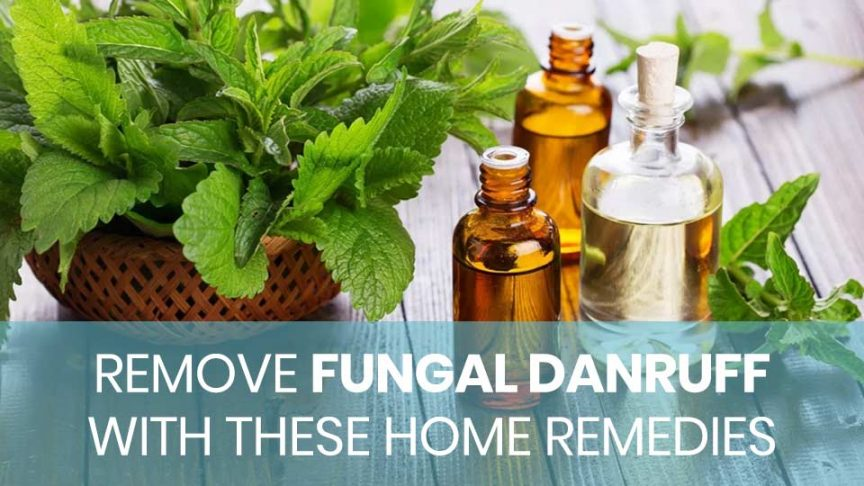 Home remedies for fungal dandruff