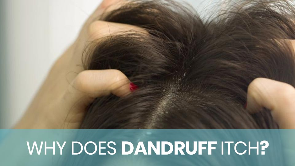Woman Scratching Hair Due to Dandruff